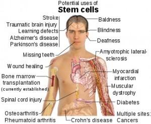 Det forskes mye rundt om i verden på hvilke sykdommer stamceller kan hjelpe mot.